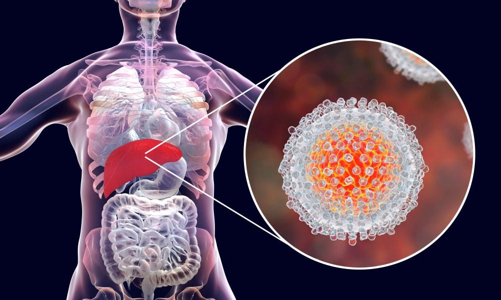 Cientistas que descobriram o vírus da Hepatite C ganham Nobel de Medicina